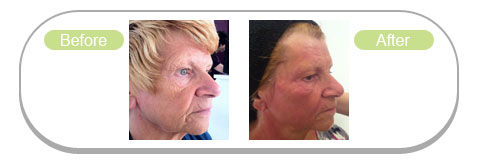 Radiofrequency Facials
